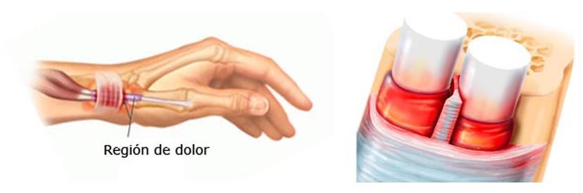 img-casosclinicos-tenosinovitis-interior